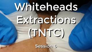 Whiteheads Extraction (TNTC) - Session 6