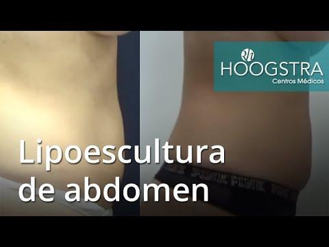 Lipoescultura de abdomen (18222)