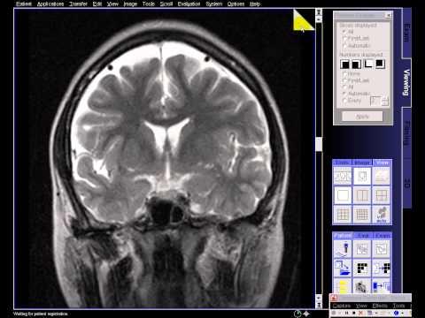 Brain mri artifacts thumbnail
