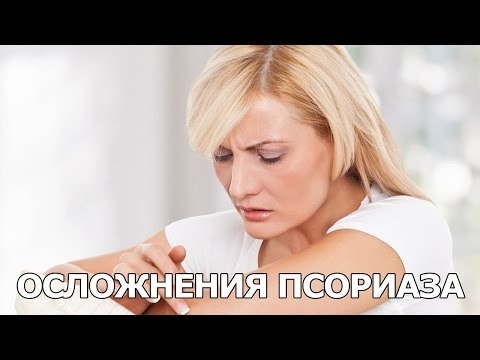 Какие осложнения бывают при псориазе