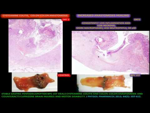 Impact of BPC 157 on healing of ileorectal anas – Health and
