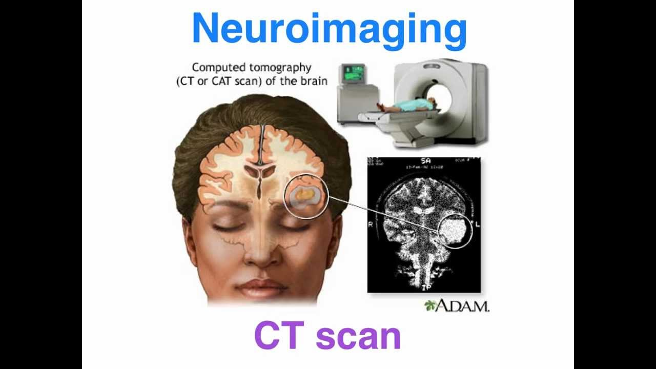 the history power and application of mri in neuroimaging Functional magnetic resonance imaging on the history applications and future of the technology daniela seixas chair of the working party v.