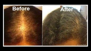 sheree congratulates hair loss diet success stories