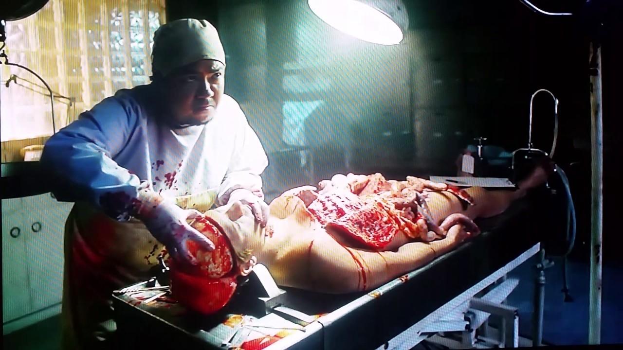 Human Autopsy part 1