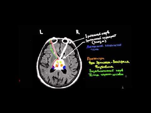 Vision Pathways and Pupillary light reflex