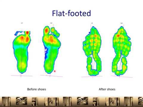 choosing-a-good-running-shoe-|-flat-foot-|-overpronator-|-orthopaedic-clinic-singapore