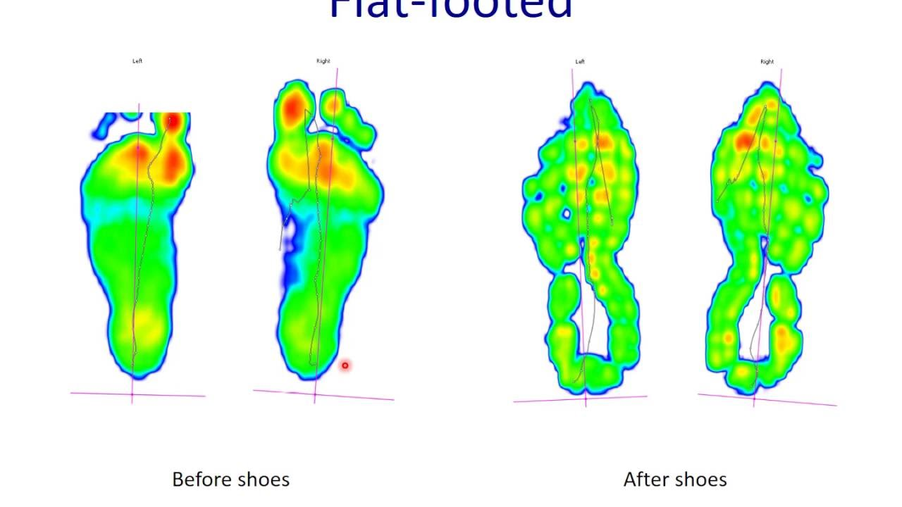 choosing a good running shoe flat foot overpronator orthopaedic clinic singapore [ 1280 x 720 Pixel ]