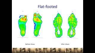Choosing A Good Running Shoe | Flat foot | Overpronator | Orthopaedic Clinic Singapore