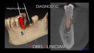 Correction des défauts osseux par régénération osseuse guidée.