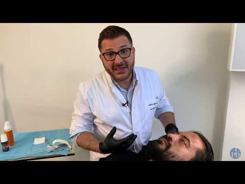 Rinomodelación con Ácido Hialurónico
