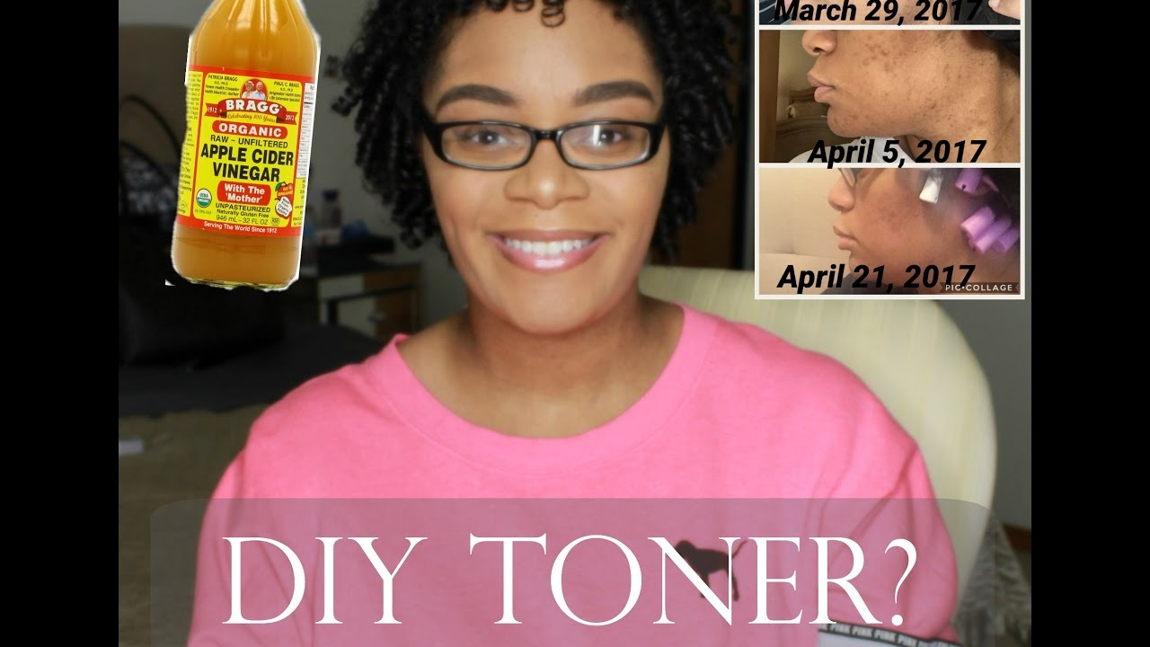 Drinking Apple Cider Vinegar Before And After Acne