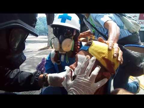 Violinista Wuilly Arteaga fue herido durante represión en Bello Campo