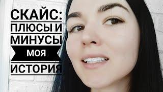 видео Скайсы для зубов: плюсы и минусы