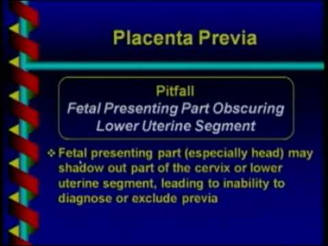 Placenta, Cord and Fluid