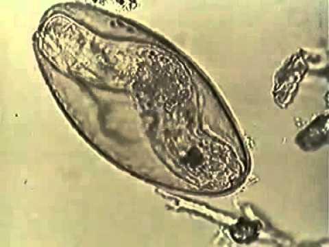 Печёночный сосальщик (цикл развития)