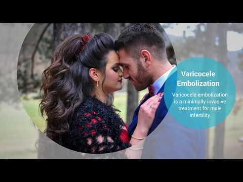 Varicocele Treat Male Infertility Without Surgery