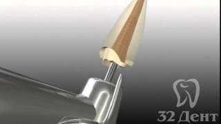 Эстетическая стоматология: восстановление зуба штифтом и коронкой(, 2014-09-23T17:48:41.000Z)