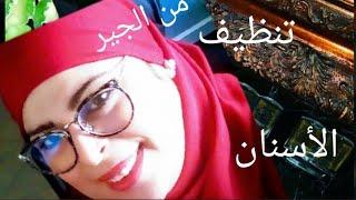 خلي ابتسامتك حلوة 😀تنظيف وتقشير الأسنان من الجير 💕détartrage avec produit  naturel