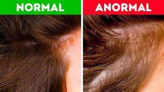 Saçlarınız Sağlığınız Hakkında Neler Söyler