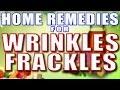 Home Remedies for Wrinkles/Freckles II झुर्रियों और झाइयों का घरेलु उपचार II