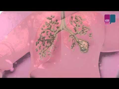 CCAM, wat gebeurt er in je longen?