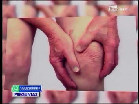 Causas de la artritis