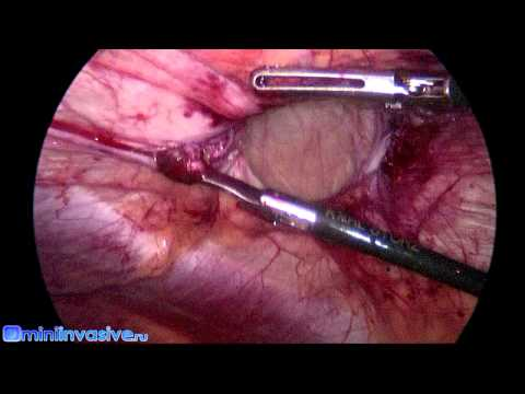 Laparoscopic Surgery (IPOM) for Umbilical Hernia with Parietex Composite Mesh