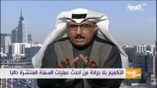 تقنية التكميم بدون جراحة تدخل #السعودية