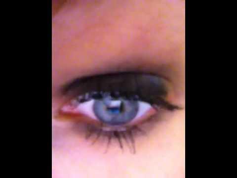muskelryckningar i ögat