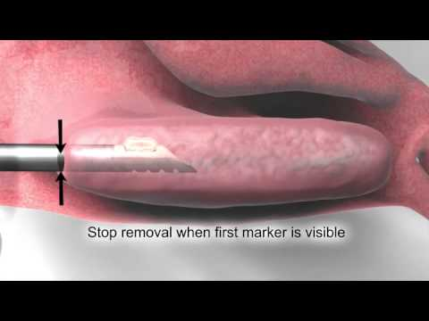 Turbinoplasty | Downtown Los Angeles | L.A. Sinus & Allergy Specialists