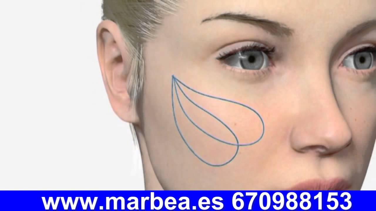 Tratamiento para la flacidez del cuello