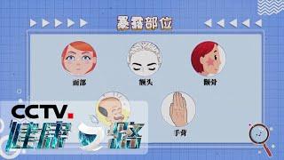 《健康之路》 20200525 晒出来的癌症| CCTV科教