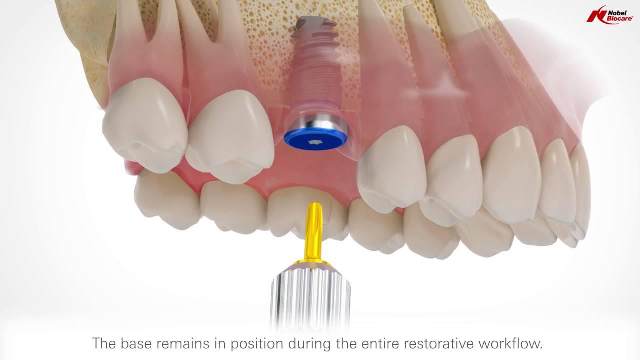 Ознакомьтесь с концепцией дентальных имплантатов
