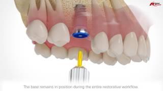 On1 restorative concept | Nobel Biocare