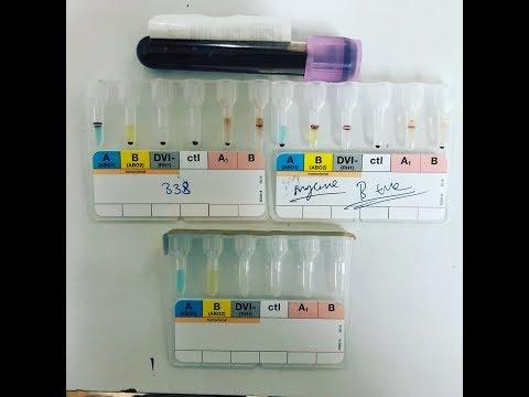 Blood Group Gel Card Method