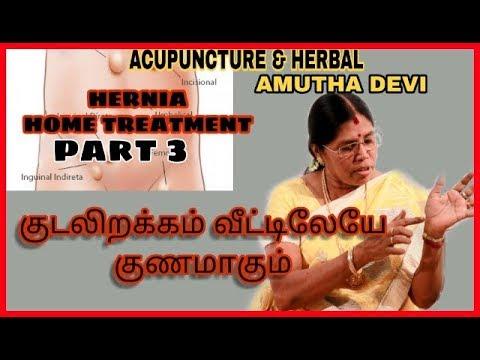 குடலிறக்கம்  வீட்டு மருத்துவம்| Part -3 | Hernia | Acupuncture & Herbal |  Amutha Devi | CrazyAndam