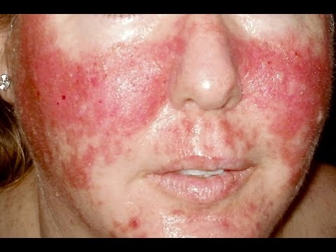 A mysterious rash on a woman's hands and lips stumped ...