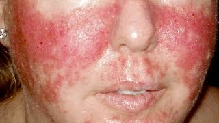 Vegan diet detox rash HELP! Q&A