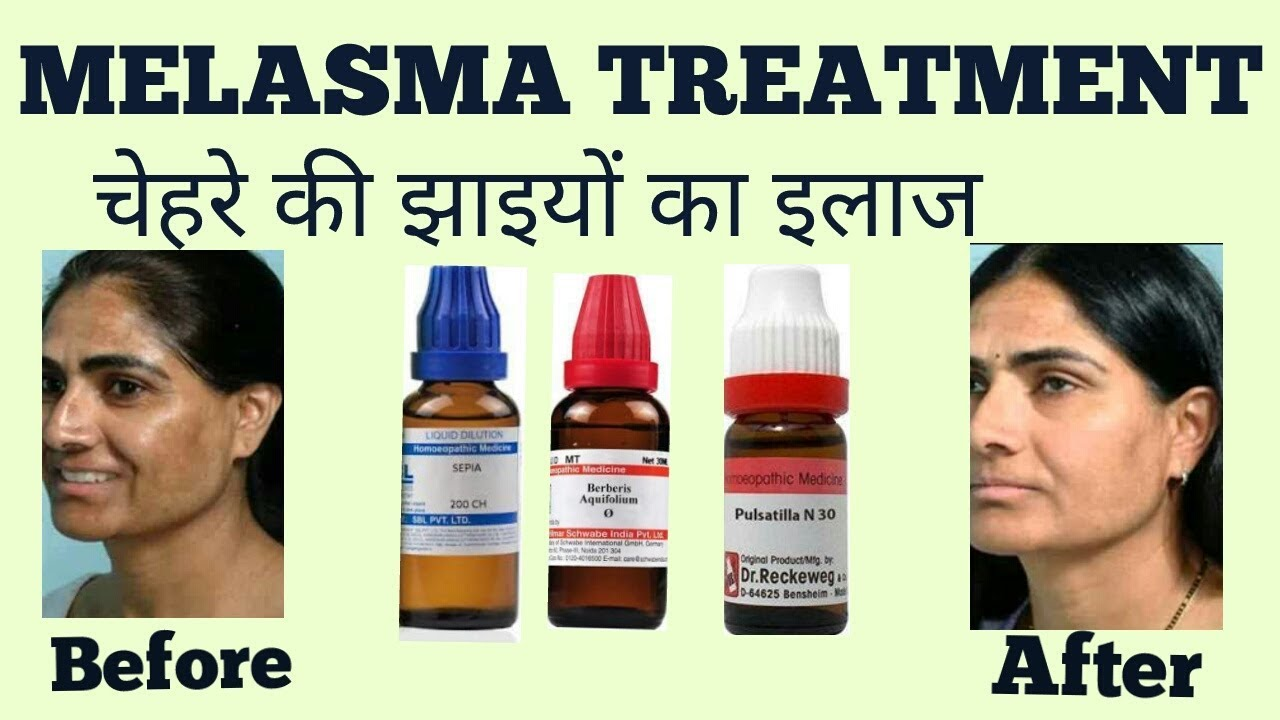 MELASMA TREATMENT (चेहरे की छाइयों ईलाज )