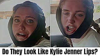 Funny Videos Of People High On Anesthesia 😅 | Funny Fails