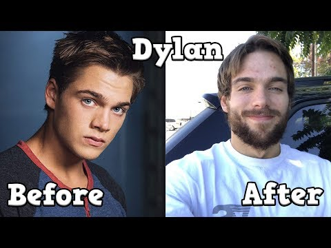 Teen Wolf Cast - Before And After [FULL]
