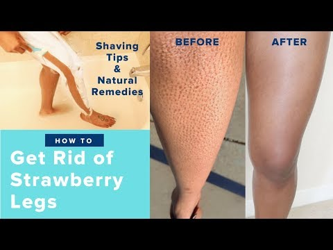 How to Get Rid of Strawberry Legs Fast LIKE A BOSS! | Easy Regimen & AT HOME REMEDIES