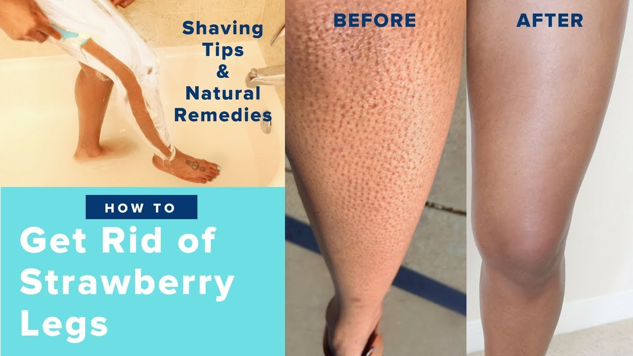 How To Get Rid Of Strawberry Legs Fast Like A Boss Easy Regimen