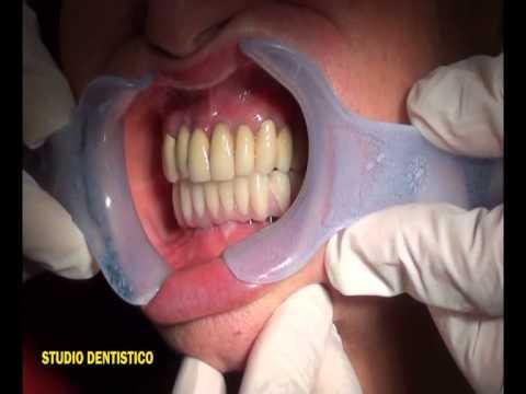 Videocorso di Implantoprotesi - O.T. Implant Dental Studio S.r.l.