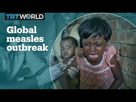 Measles outbreak spread globally, with vaccine scare blamed Mp3