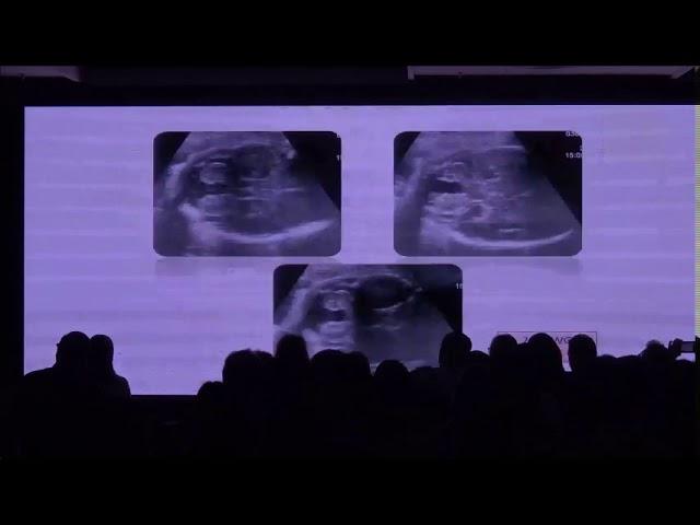 Abordaje prenatal de las anomalías de la fosa posterior. Laurent Guibaud