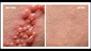 How To Cure Herpes - Cures for Herpes - Herpes Cures(Natural Cure For Herpes With Home Remedies: Symptoms and Treatment. Buy