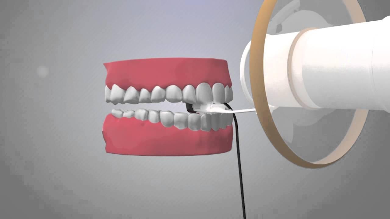 Sensor Para Radiografia Digital Micro Imagem Youtube