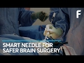 Meet The Needle That Could Revolutionize Neurosurgery