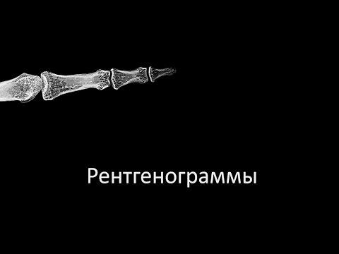 Перелом плеча (плечевой кости) - Причины, симптомы и